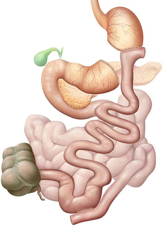 Adipositaschirugie Biliopankreatische Teilung